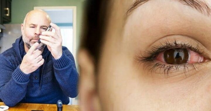 Diabetes type 2: High blood sugars and the eyes – glaucoma could cause blindness