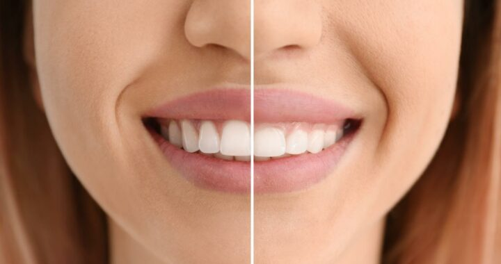 What Is Gum Contouring, And How Can It Change Your Smile?