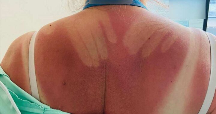 How not to apply sunscreen: Sexy hunk sunburn is too hot to handle