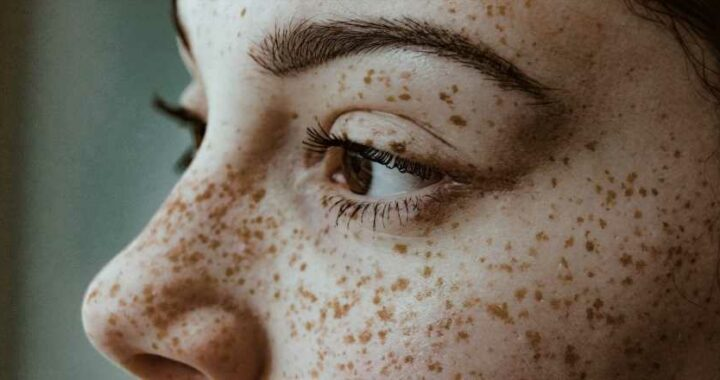 What is the difference between dry and dehydrated skin?